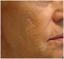 Gesichtsfalten vor Laserbehandlung Berlin Aesthmedic