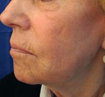 Hautfalten nach Laserbehandlung Berlin Aesthmedic