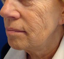 Hautfalten vor Laserbehandlung Berlin Aesthmedic