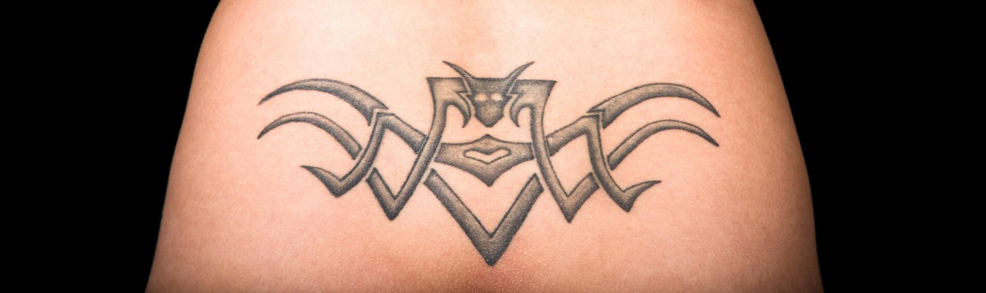 Tattooentfernung Berlin Aesthmedic